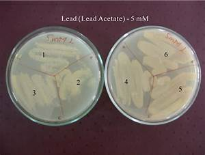 Dna Fingerprinting Of Bacillus Cereus From Diverse Sources