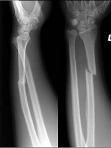 Galeazzi fracture-dislocations consist of fracture of the ...