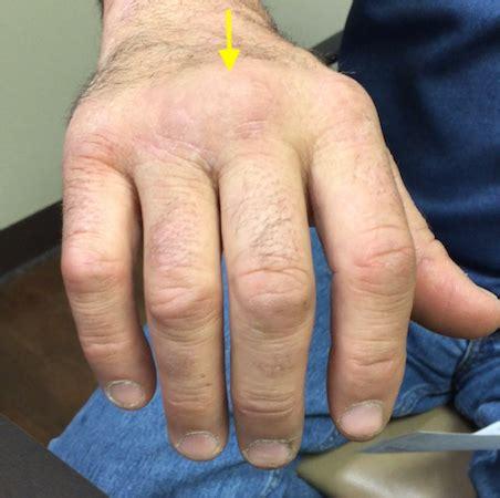 extensor tendon subluxation finger hand surgery source