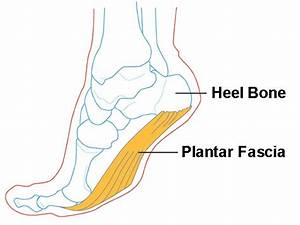 The Complete Guide To Treating Plantar Fasciitis