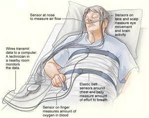 In Lab Sleep Study  Central sleep apnea Sleep Apnea