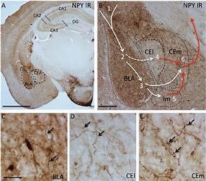 High Levels Of Npy In The Fear Circuitry Of The Amygdala