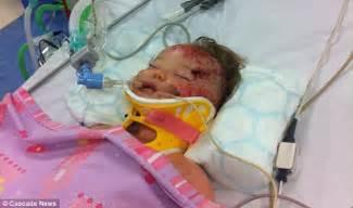 latvian man  gave baby girl devastating brain injury