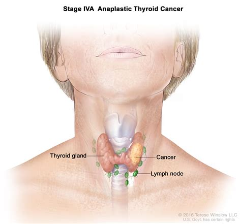 Thyroid Cancer Treatment Pdqpatient Version National