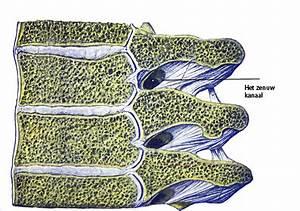 Borstbeen pijn: Waardoor wordt pijn aan het borstbeen veroorzaakt?
