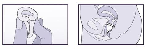 menstruationscup einführen