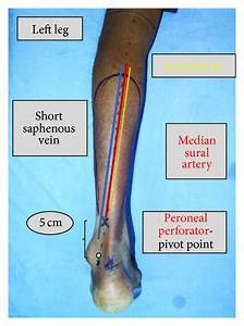 Sural Artery Related Keywords & Suggestions - Sural Artery ...