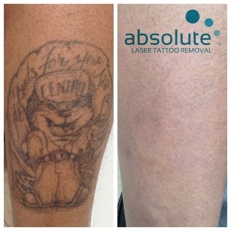 gallary  absolute laser tattoo removal
