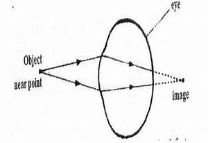 A  Draw A Ray Diagram To Show How A Convex Lens Works As