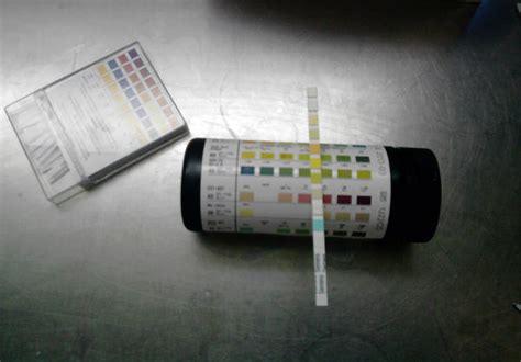 positive nitrates  urine  pregnancy