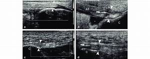 A And C  Achilles Tendon Shows Normal Ultrasound