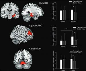 Video gaming boosts certain brain regions, study says - CNET