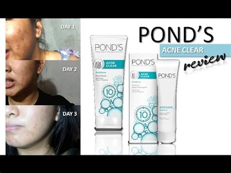 ponds acne clear review  day challenge ohmyynah