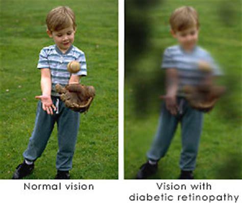 diabetic eye doctor   denver  vision care