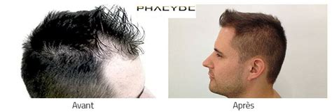 Hair Transplant Somogyi Andras 2700+ Before After
