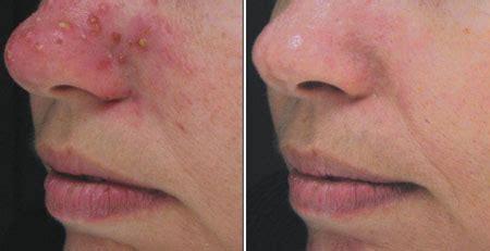 acne removal boston chronic acne treatment dr brooke