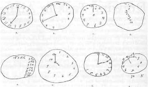 clock drawing test exles of clock drawing test performance identify