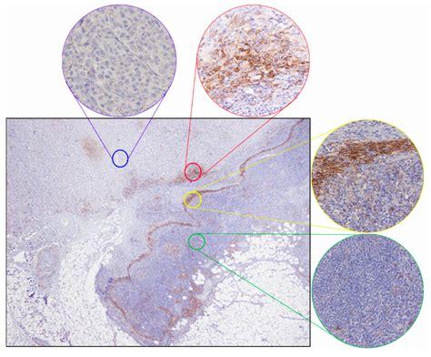 ijms  full text pd  immunohistochemical