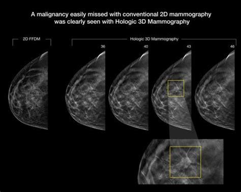 3d digital breast tomosynthesis