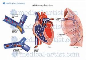 Medical Illustrations Of The Lungs And Respiratory System