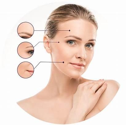 Botox Areas Treatment Eyes Spa Between Medical