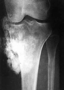 Archive Of Standardized Exam Questions: Osteosarcoma ...