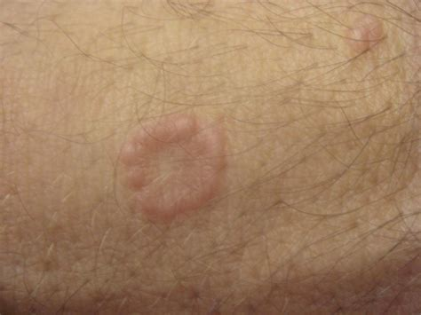 Erythema Annulare Pictures Photos
