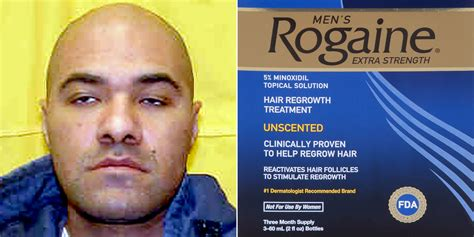 bald guy   years  prison  stealing rogaine