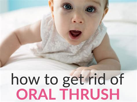 How To Get Rid Of Oral Baby Thrush 7 Home Remedies That