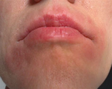 Image Gallery Latex Allergy Mouth