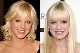 anna-faris-before-and-after - Celebrity Plastic Surgery