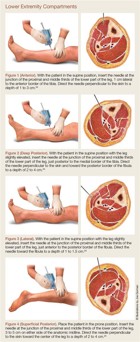Acute Compartment Syndrome   MDedge Emergency Medicine