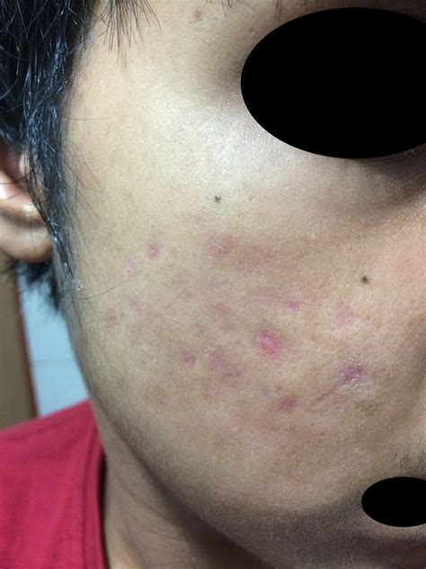 Accutane Can Cause Scarring Prescription Acne
