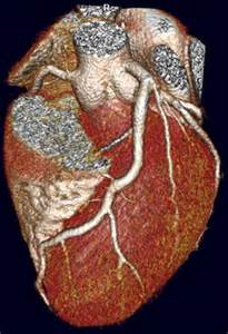 CT Coronary Angiography by Dr Allan Harkness Angiography