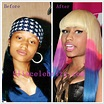 Nicki Minaj Before Surgery | Celebrity Weight Loss and ...