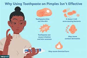Does Using Toothpaste On Pimples Work