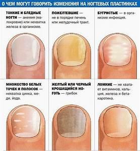 Лечение содой грибок на ногтях ног