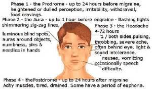 Migraine with Aura Numbness Face