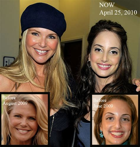 alexa ray joel plastic surgery before and after photos