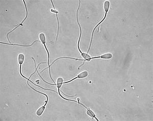 Bull Sperm Morphology
