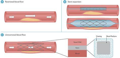 Understanding Drug-Eluting Stents at Boston Scientific ...