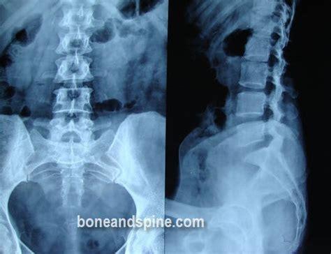 lumbar spondylosis bone  spine
