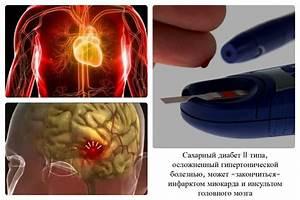 Препарат от гипертонии при сахарном диабете
