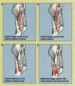In Patients Undergoing Evaluation For Iliotibial Band