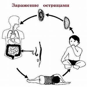 Радиоактивное лечение аденомы простаты