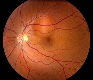 Retinal Pigment Epithelial Detachment With No Subretinal ...