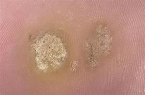 Подошвенные бородавки при беременности лечение