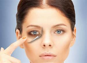 How to Get Rid of Dark Circles Under Your Eyes EASILY