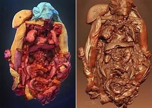 16   Human Cadaver 3d Model      Arqute Com  Gallery  3d
