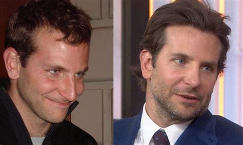 Bradley Cooper Hair Plugs